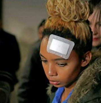 Gabriella Engels, 20 year old model attacked by Grace Mugabe